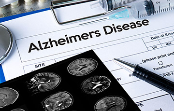 a medical form titled Alzheimer's Disease on a clipboard next to a brain x-ray, medication, and syringes
